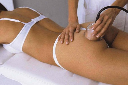 вакуумний масаж від целюліту
